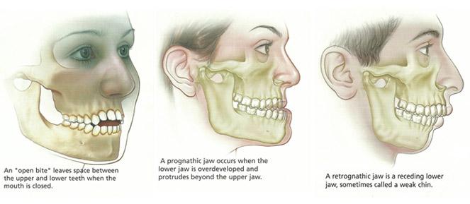 Orthognathic Surgery